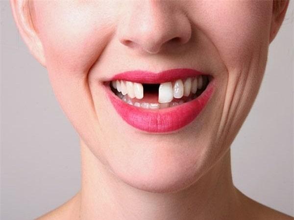 Mơ thấy rụng răng là điềm báo gì, đánh con số nào may mắn?