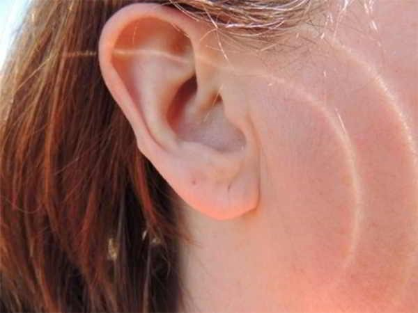 Tại sao lại có hiện tượng nóng tai trái?